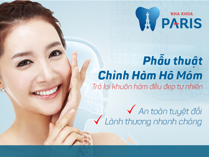 Địa chỉ phẫu thuật chỉnh nha ở Hà Nội ĐẢM BẢO chất lượng uy tín 2017 3