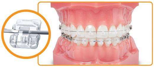 Mắc cài sứ có độ tương đồng cao với màu răng thật