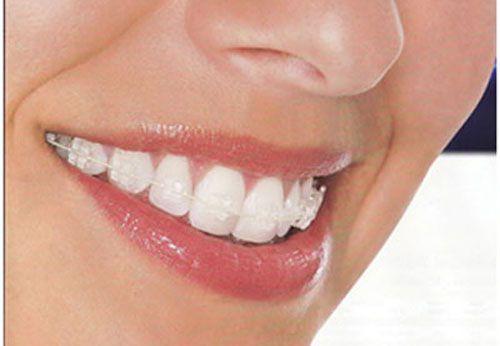 3 Ưu điểm mắc cài sứ - Niềng răng thẩm mỹ trong suốt tự nhiên 3