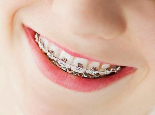 Nên chọn niềng răng mắc cài kim loại tự buộc hay thường là tốt nhất? 1
