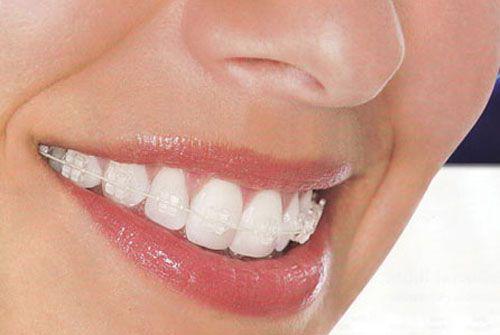 Niềng răng sứ giá bao nhiêu tiền là chuẩn?Bảng giá Mới & Ưu đãi 2017