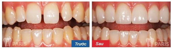Niềng răng thưa không đau răng ĐỀU & ĐẸP với CN 3D Speed 4