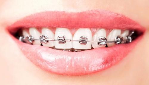 4 Lí do chọn niềng răng mắc cài tự buộc cho hàm Đều & Đẹp như ý