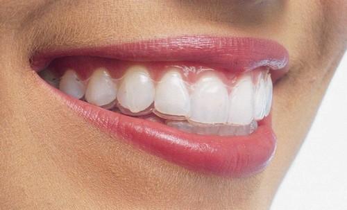 [Tư Vấn] Niềng răng không mắc cài ở đâu tốt tại Hà Nội và HCM? 1