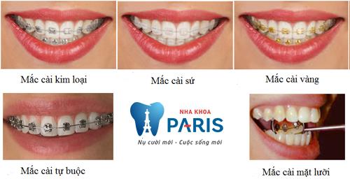 Các loại mắc cài niềng răng: Ưu nhược điểm & ai phù hợp với từng loại 1