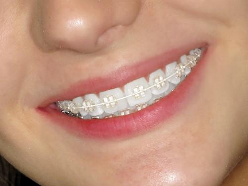 Các loại mắc cài niềng răng: Ưu nhược điểm & ai phù hợp với từng loại 3