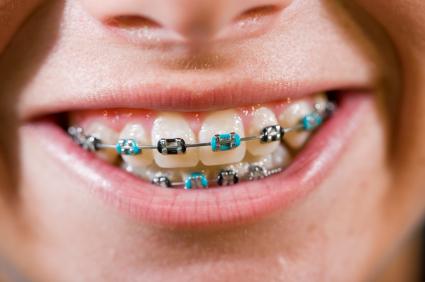 Các loại mắc cài niềng răng: Ưu nhược điểm & ai phù hợp với từng loại 2