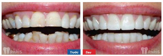 Kết quả thực tế trước và sau khi Niềng Răng thay ❝Nụ Cười Mới❞ 7