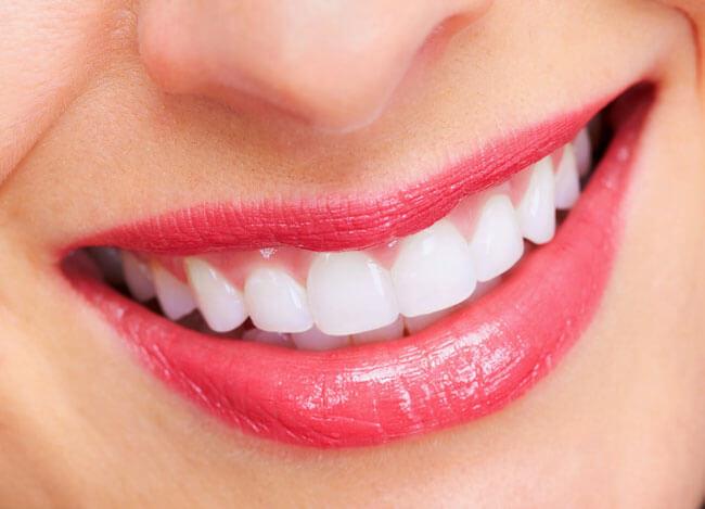 Kết quả thực tế trước và sau khi Niềng Răng thay ❝Nụ Cười Mới❞ 1