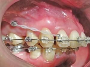 Niềng răng hô mất bao lâu thì chữa khỏi để có hàm răng đều đẹp?