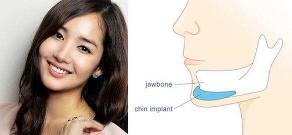 5 điều bạn cần biết trước khi thực hiện phẫu thuật hàm mặt【Tin Tức】4
