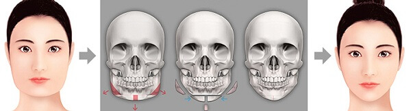 """Phẫu thuật hàm mặt & 5 điểm lưu ý """"KHÔNG THỂ BỎ QUA"""" 3"""