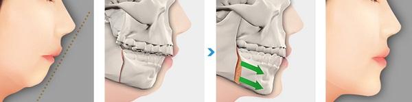 5 điều bạn cần biết trước khi thực hiện phẫu thuật hàm mặt【Tin Tức】6
