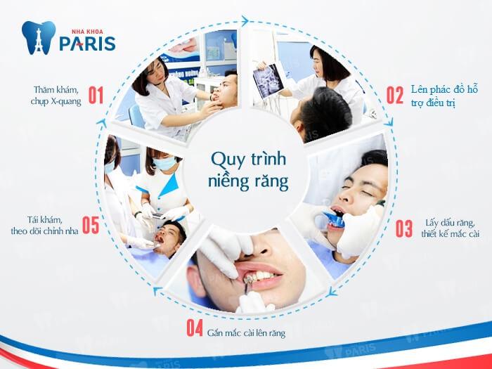 Niềng răng mắc cài 3D Speed: Hiệu quả tối ưu - giá trị nổi bật 6