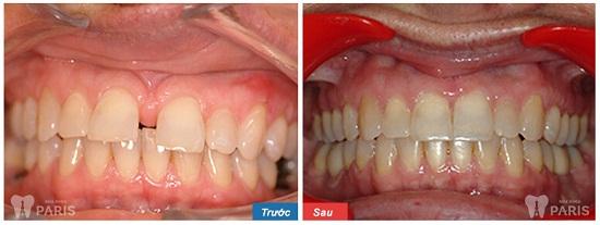 """Top 3 cách chỉnh răng thưa hiệu quả nhất 2017 được """"đề cử"""" 3"""