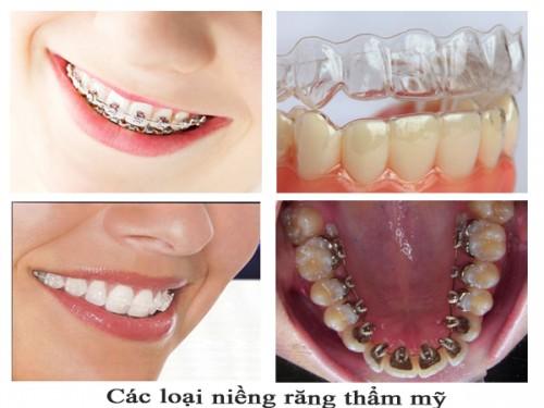 Bảng giá chi phí niềng răng thẩm mỹ tại nha khoa uy tín