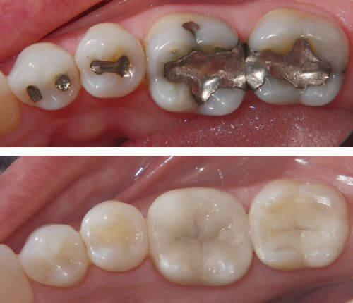 Top 3 cách chỉnh răng thưa đơn giản ❝Hiệu Quả❞ cho từng trường hợp 1