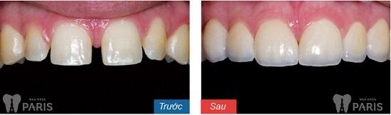 Cẩm nang răng thưa và cách khắc phục với 3 giải pháp hàng đầu 5