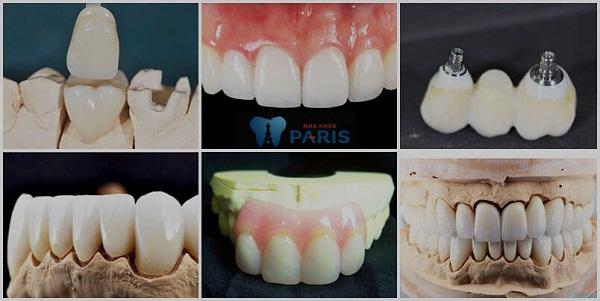 Top 3 cách chỉnh răng thưa đơn giản hiệu quả nhanh nhất