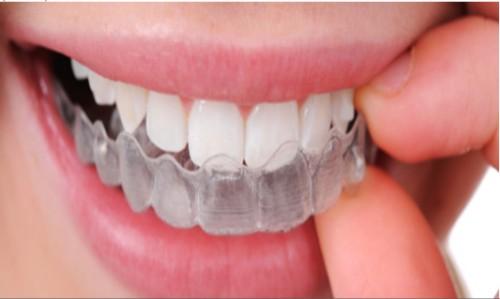 Chi phí niềng răng Invisalign giá bao nhiêu tiền?Bảng giá Chuẩn - ảnh 1