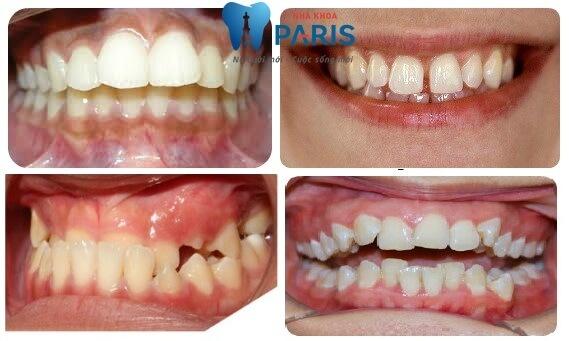 Niềng răng mắc cài 3D Speed: Hiệu quả tối ưu - giá trị nổi bật 2