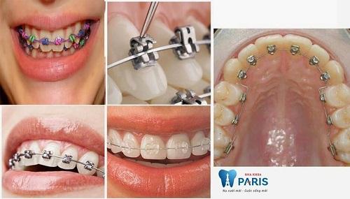 Các loại niềng răng mắc cài: Ưu - nhược điểm & tư vấn lựa chọn 5