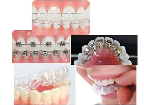 Niềng răng thẩm mỹ giá bao nhiêu tiền là CHUẨN?