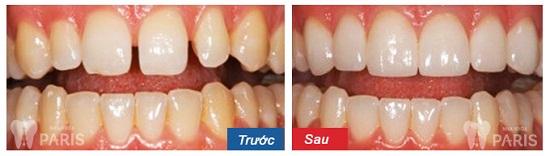 Cẩm nang răng thưa và cách khắc phục với 3 giải pháp hàng đầu 8