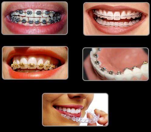 Chia sẻ 4 kiến thức về niềng răng và những điều cần biết 1