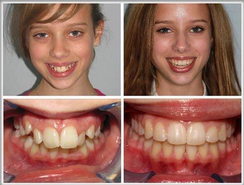 Chia sẻ 4 kiến thức về niềng răng và những điều cần biết 2