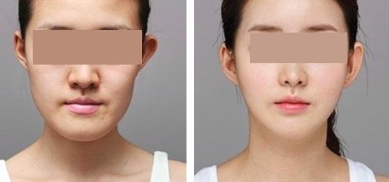 5 điều bạn cần biết trước khi thực hiện phẫu thuật hàm mặt【Tin Tức】7