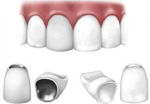 Cẩm nang răng thưa và cách khắc phục với 3 giải pháp hàng đầu 3