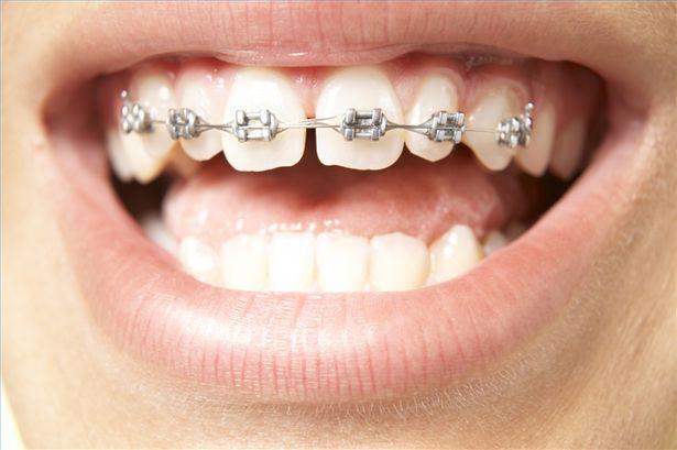 Cẩm nang răng thưa và cách khắc phục với 3 giải pháp hàng đầu 4