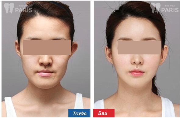 Điều trị vẩu hàm dưới - hiểu rõ trước khi lựa chọn phương pháp 3