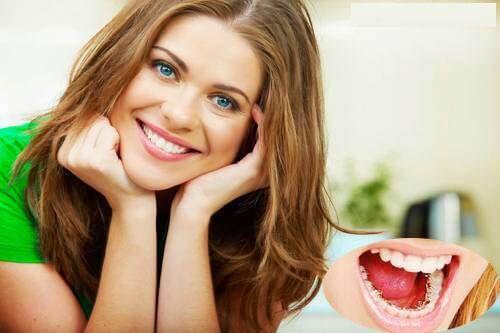Nên đi niềng răng ở đâu cho kết quả tối ưu, an toàn, không đau nhức 1