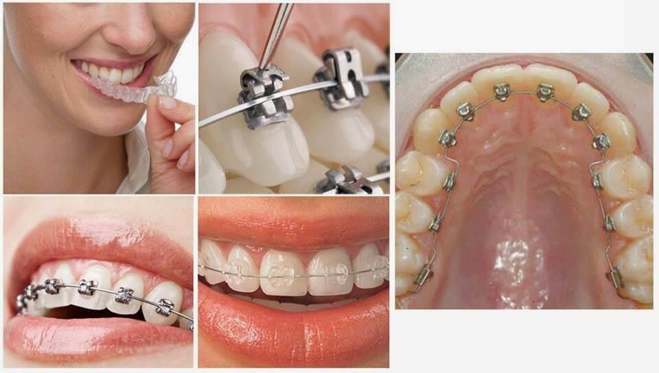 Chi phí niềng răng giá bao nhiêu 2017? Bảng giá ưu đãi 1