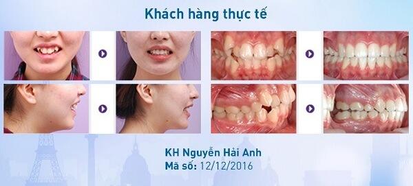Niềng răng giá bao nhiêu phụ thuộc vào 3 yếu tố nào?【Bảng Giá】2