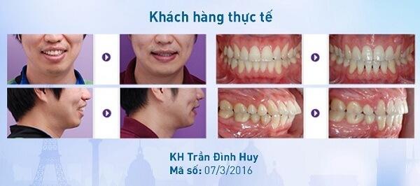 Niềng răng giá bao nhiêu phụ thuộc vào 3 yếu tố nào?【Bảng Giá】3
