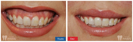 TOP 6 cách chữa cười hở lợi an toàn ĐẢM BẢO thành công từ Nha Sĩ 7