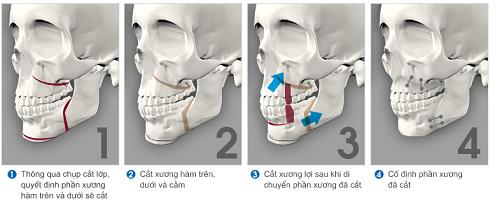 Chỉ phẫu thuật hàm hô KHÔNG cần niềng răng có hiệu quả không? 1