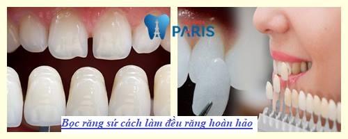 cách làm răng đều đẹp nhanh chóng nhất 12
