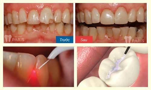 cách làm răng đều đẹp nhanh chóng