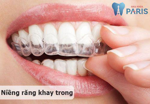 cách làm răng đều đẹp nhanh chóng nhất 13
