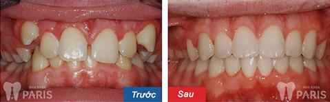 niềng răng không mắc cài ở vinh 7