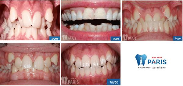 niềng răng không mắc cài eCligner 1