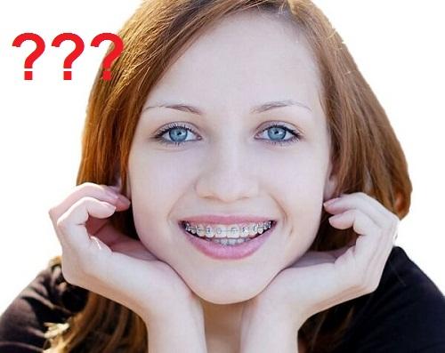 Bạn nên biết: Niềng răng có hại cho sức khỏe không? 1