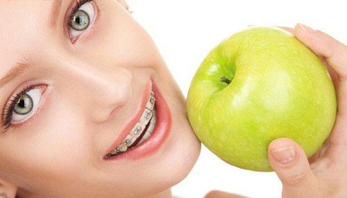 Bạn nên biết: Niềng răng có hại cho sức khỏe không? 2
