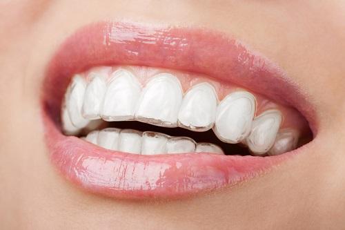 niềng răng không mắc cài eCligner 2