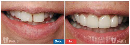 Làm thế nào để có hàm răng ĐỀU & ĐẸP tự nhiên không tốn tiền? 2