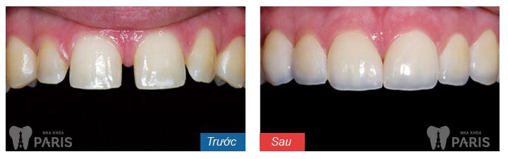 niềng răng ecligner có tốt không 4